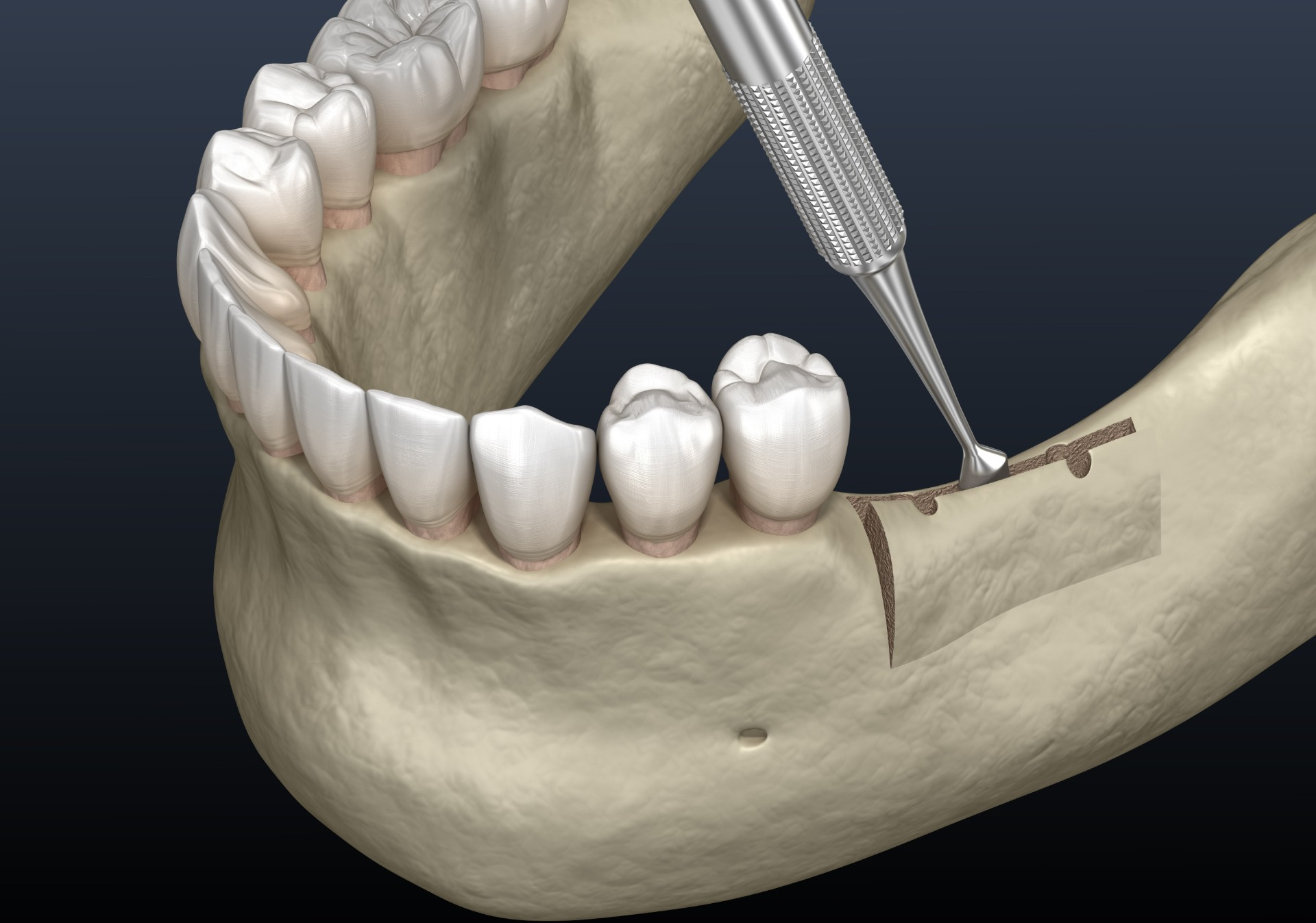 Dental-Ridge-Augmentation