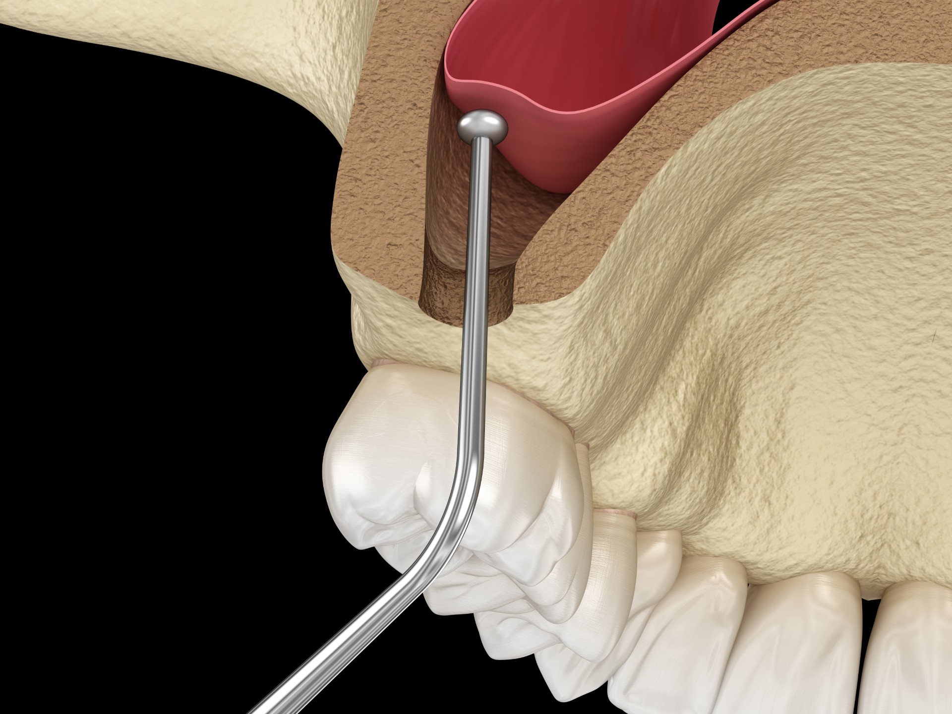 Sinus-Bone-Augmentation