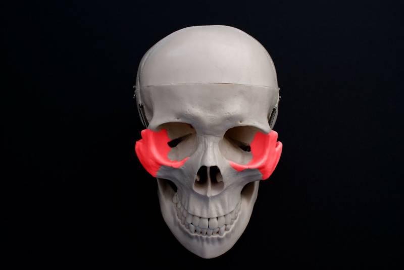 zygomatic-fracture